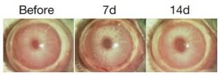인간 줄기세포로 만든 각막 상피세포를 이식하기 전 눈 먼 토끼의 눈(Before)과 7일 후(7d), 14일 후(14d) 시력을 회복한 모습. - 네이처 제공